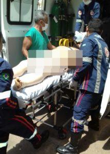 SAMU socorre vítima de tiro em Araguaína